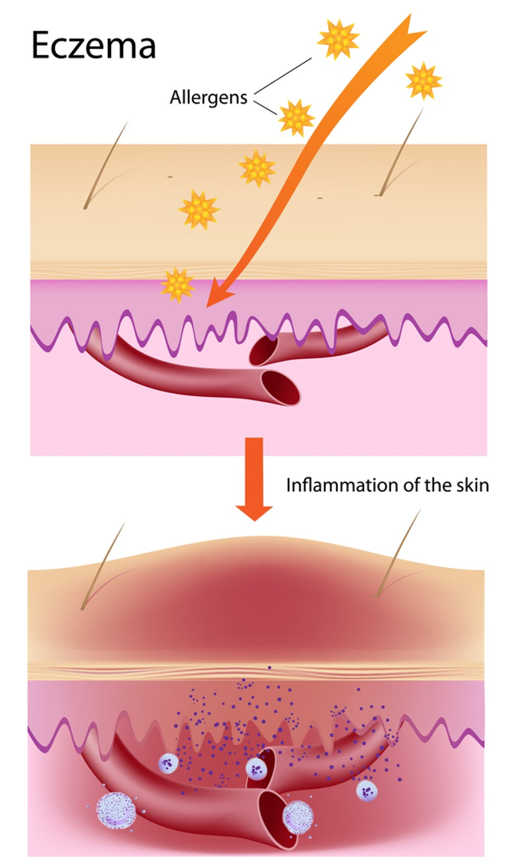 Explainer: what is eczema and what can you do about it?