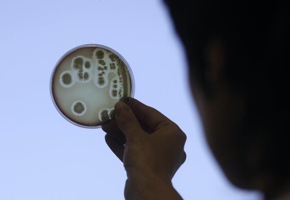 is it a virus or bacterial