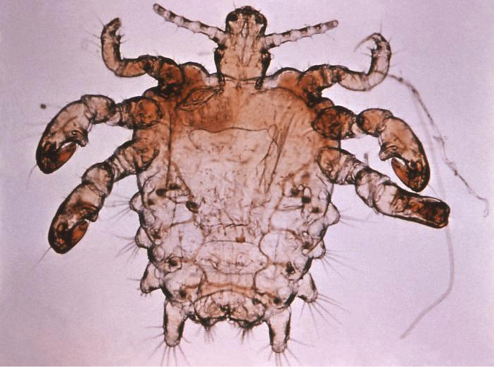 Despite 'barely there' trends, pubic lice are here to stay