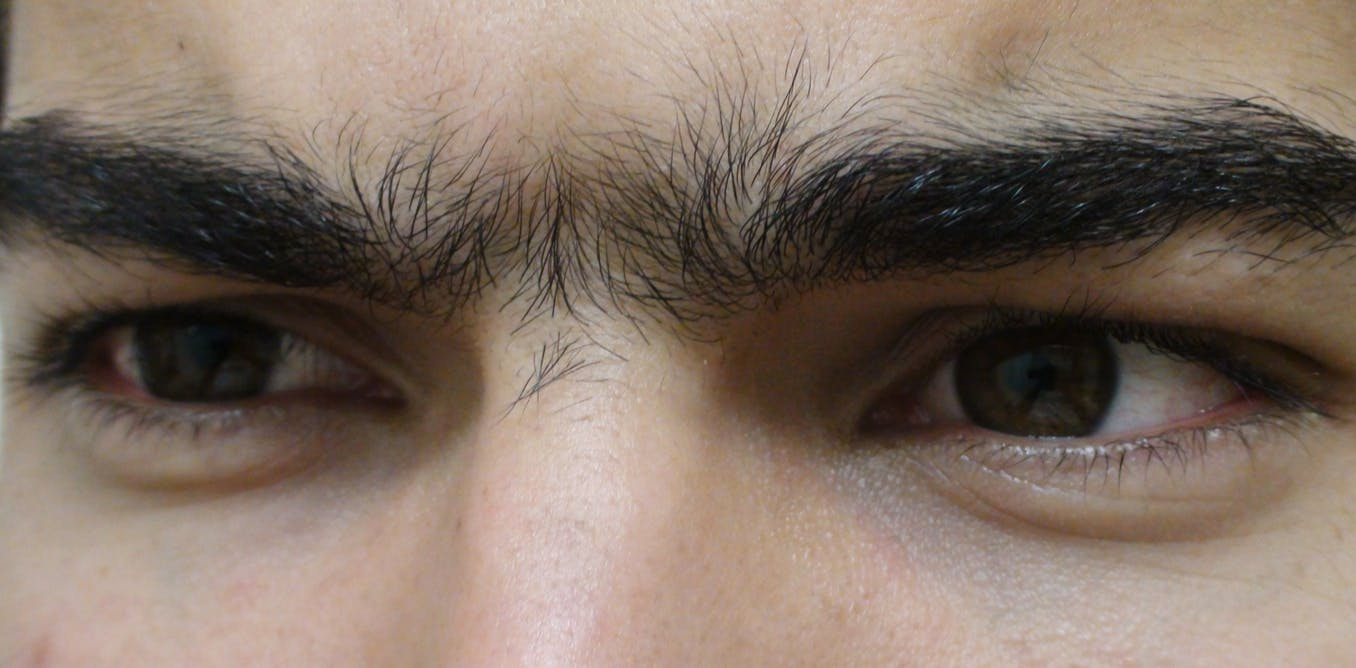 How We Discovered The Genetic Origin Of The Monobrow And Other