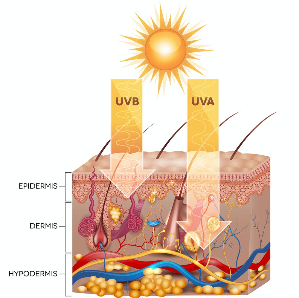 Explainer What Happens To Your Skin When You Get Sunburnt