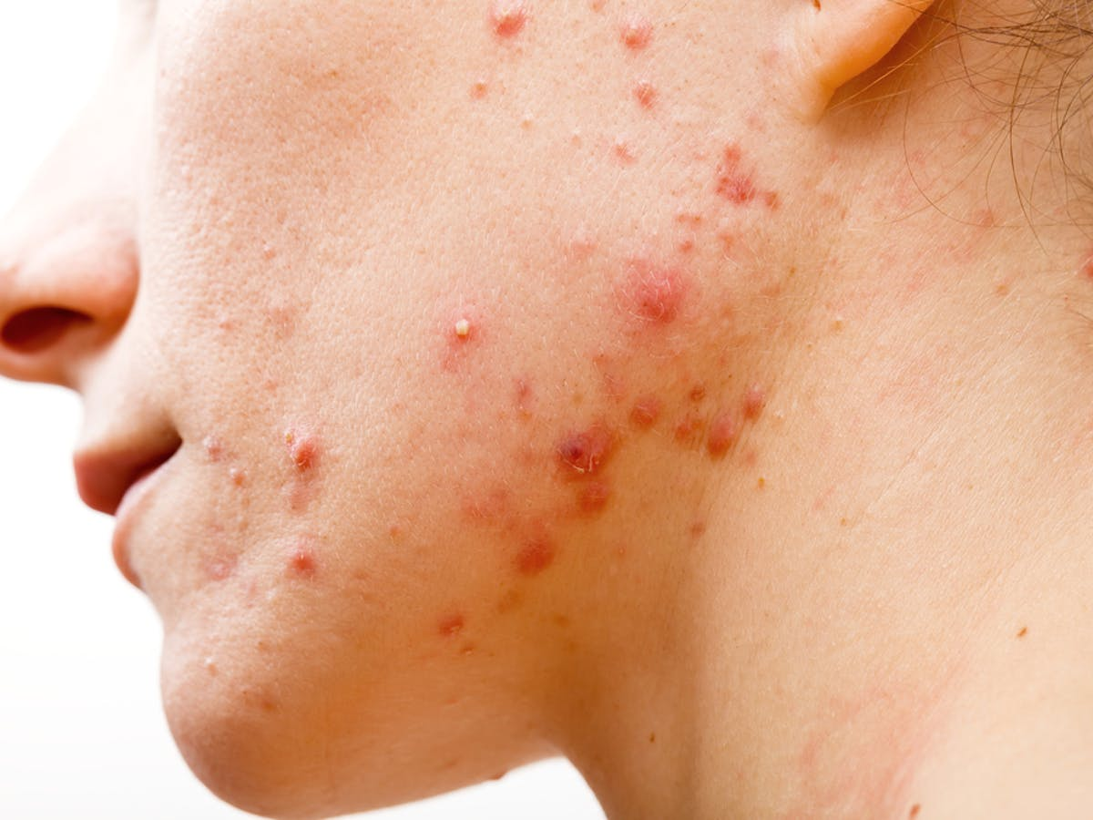 Acne Treatment Antibiotics Don T Need To Kill Bacteria To Clear Up Your Skin
