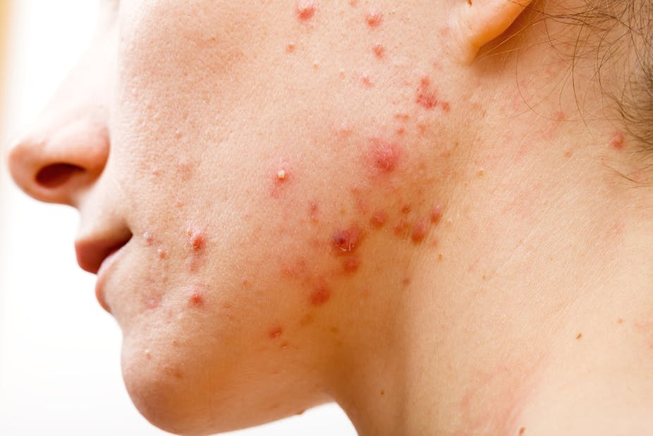 Acne treatment: antibiotics don't need to kill bacteria to