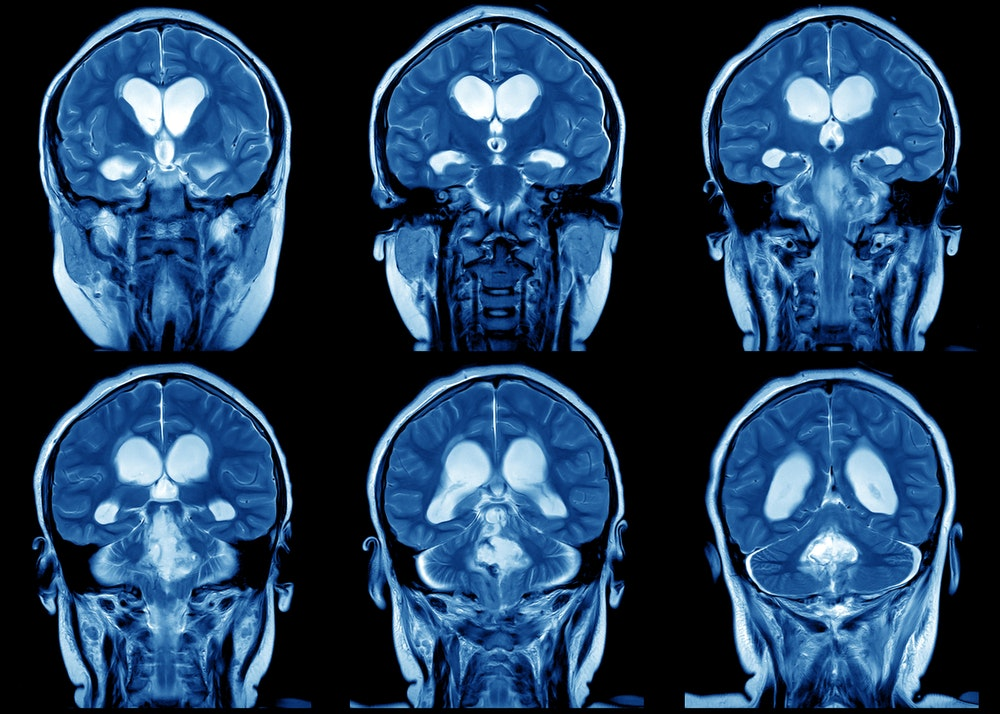 is neuroplasticity real