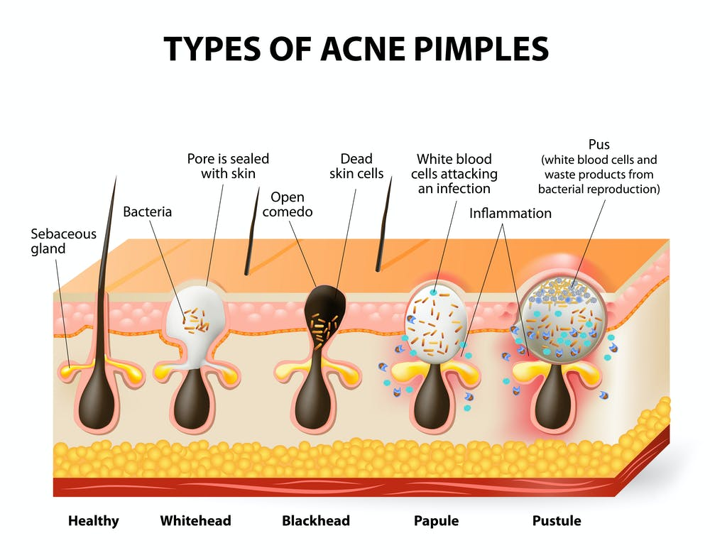 Image result for bacteria acne