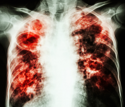 The Fight Against Tb Shifts To Fixing The Immune System