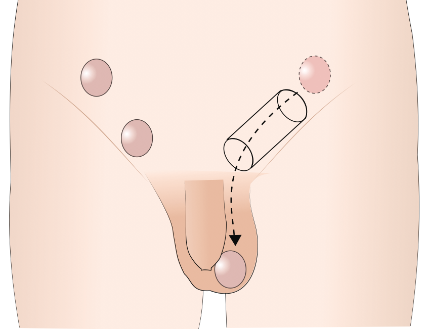 Ascending testicle during sex