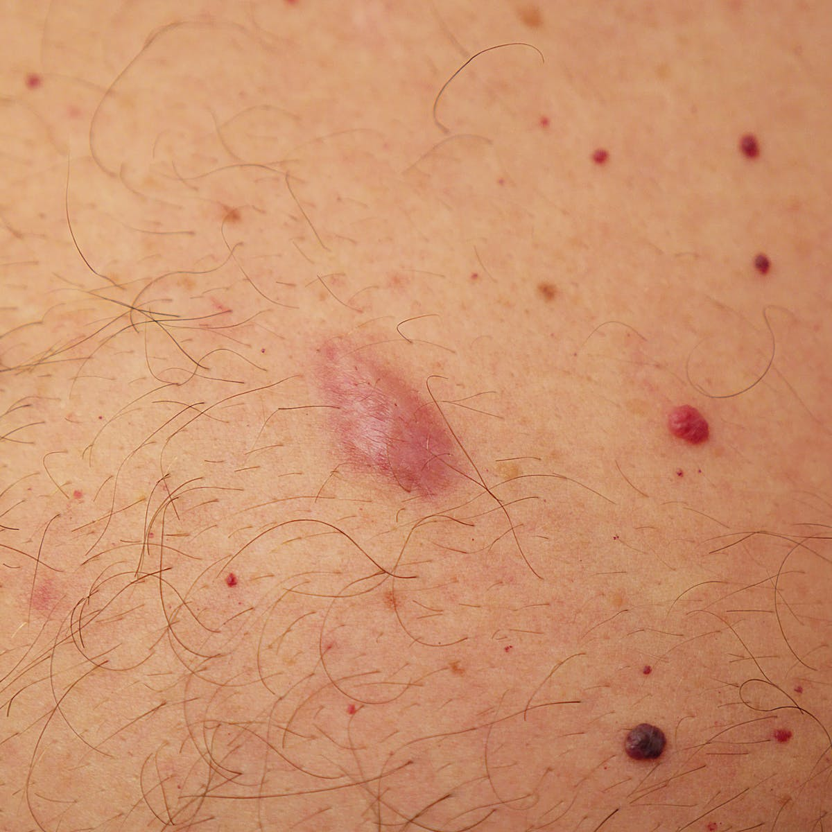 Common lumps and bumps on and under the skin: what are they?