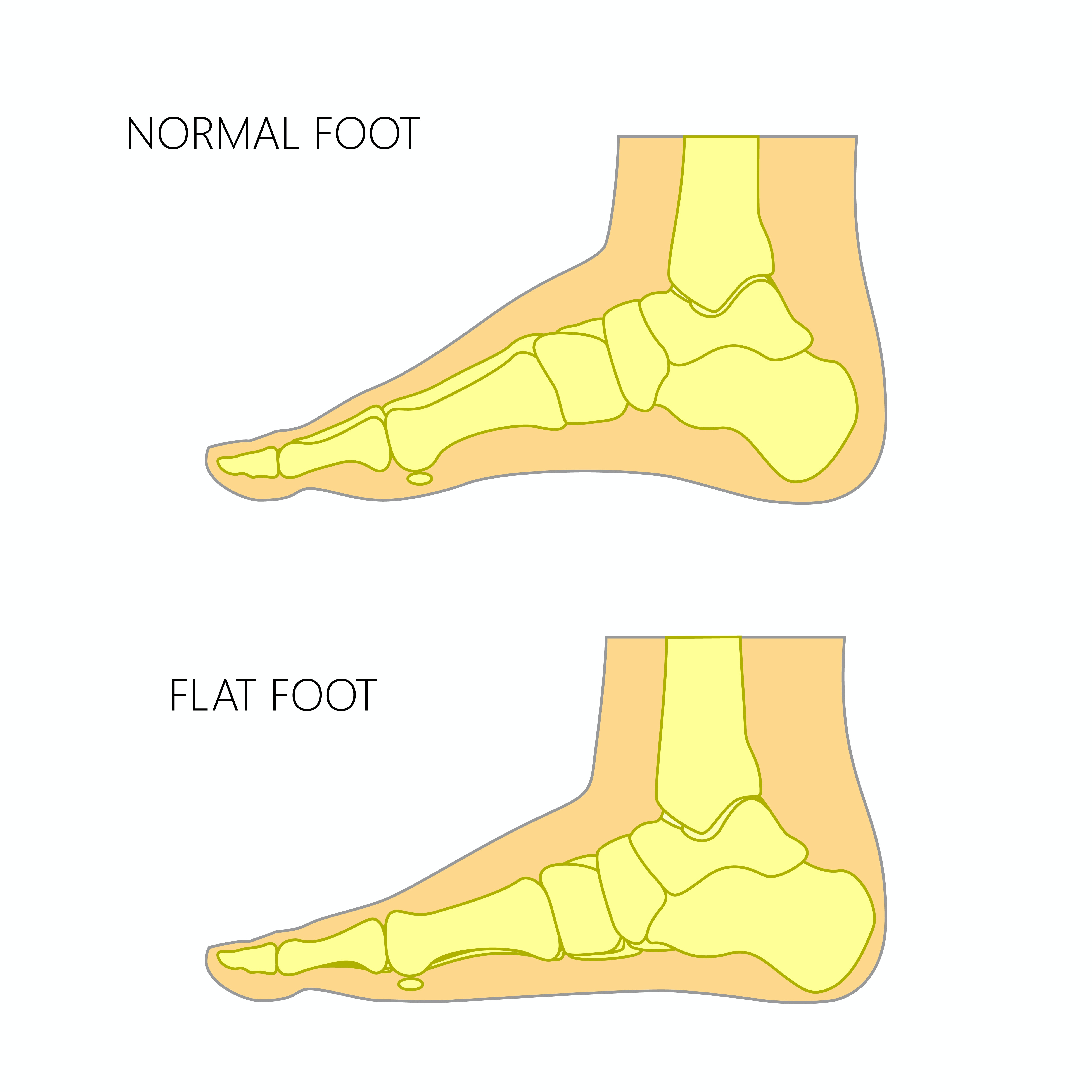 How do you treat flat footed run