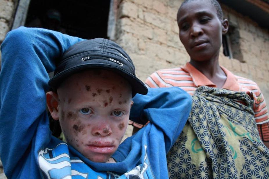 taunts and bullying drive children with albinism from tanzanian schools