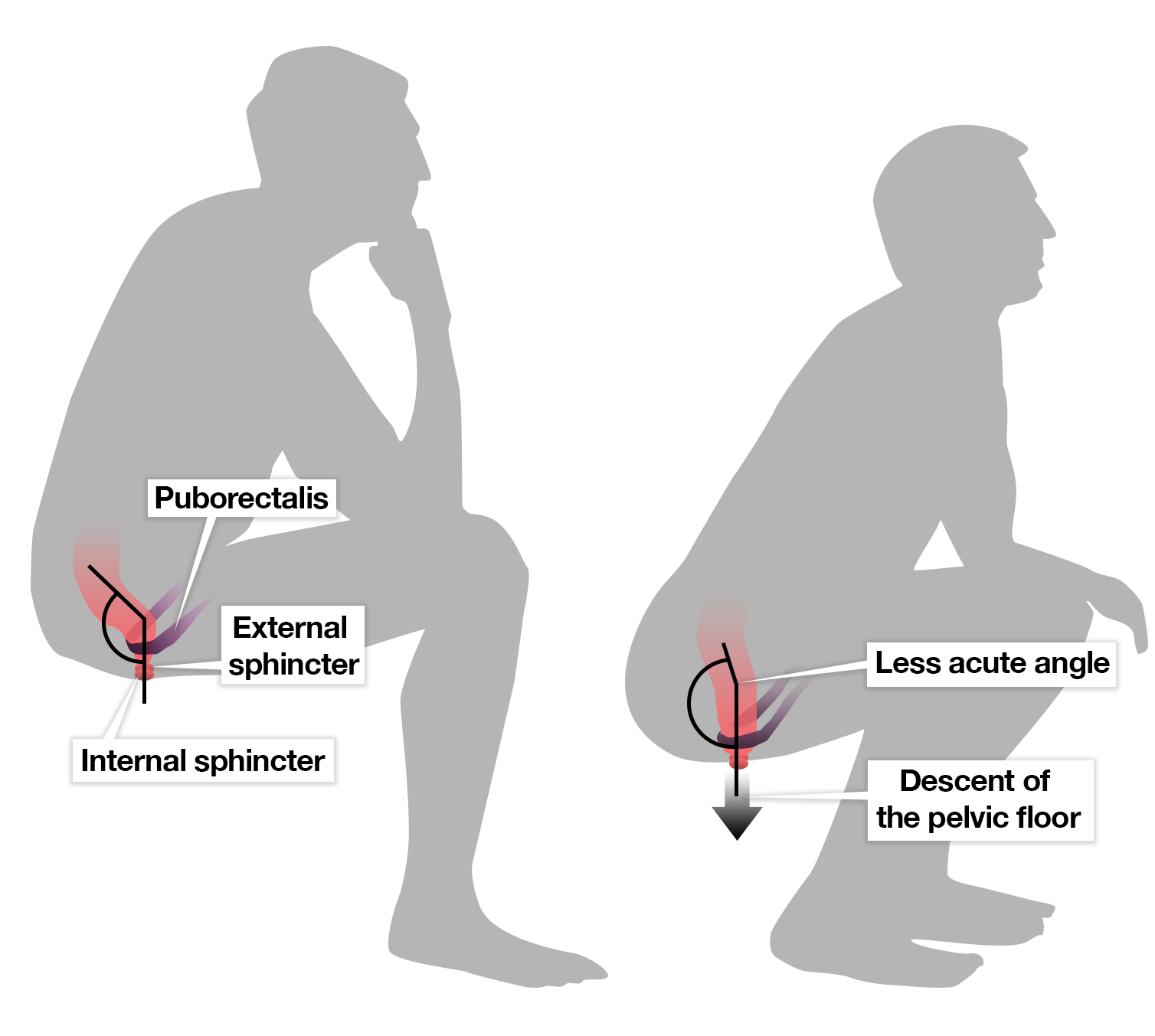 what\u0027s the best way to go to the toilet \u2013 squatting or sitting?cc by nd