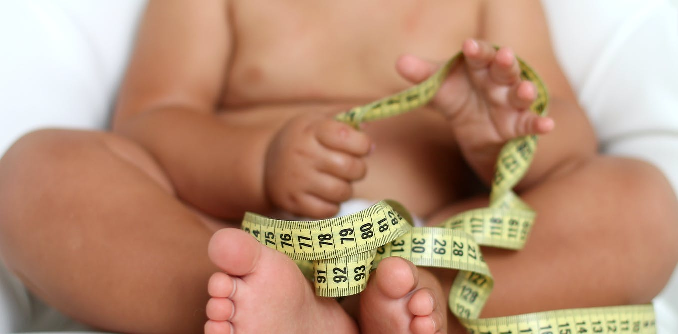 childhood obesity 8 Why do overweight and obesity in children cause anxiety the consequences of the unhealthy lifestyle during childhood can be very dangerous, it is, first and foremost, serious problems in.