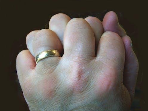 my finger keeps cracking when i bend it