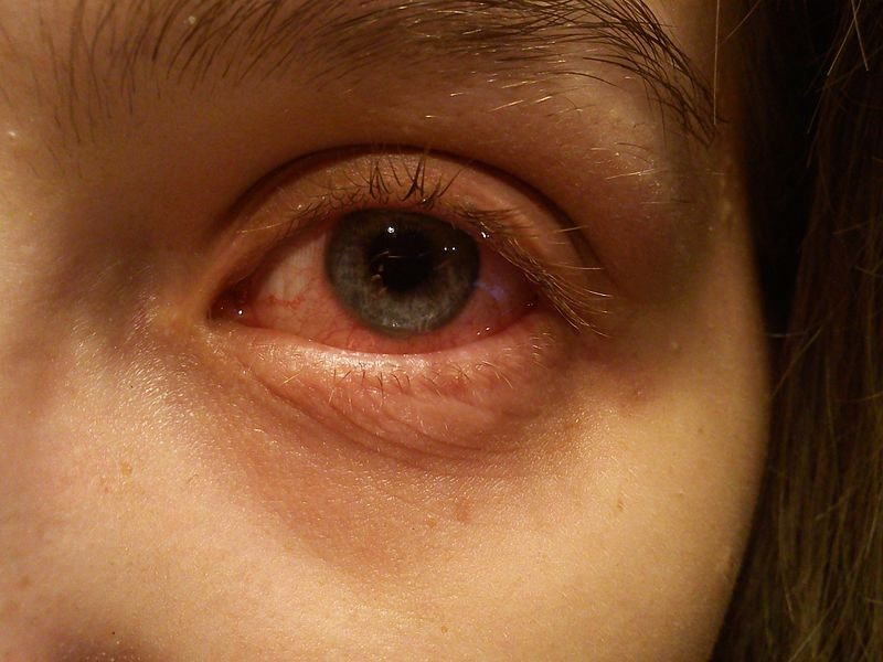 Is conjunctivitis contagious and how to prevent it