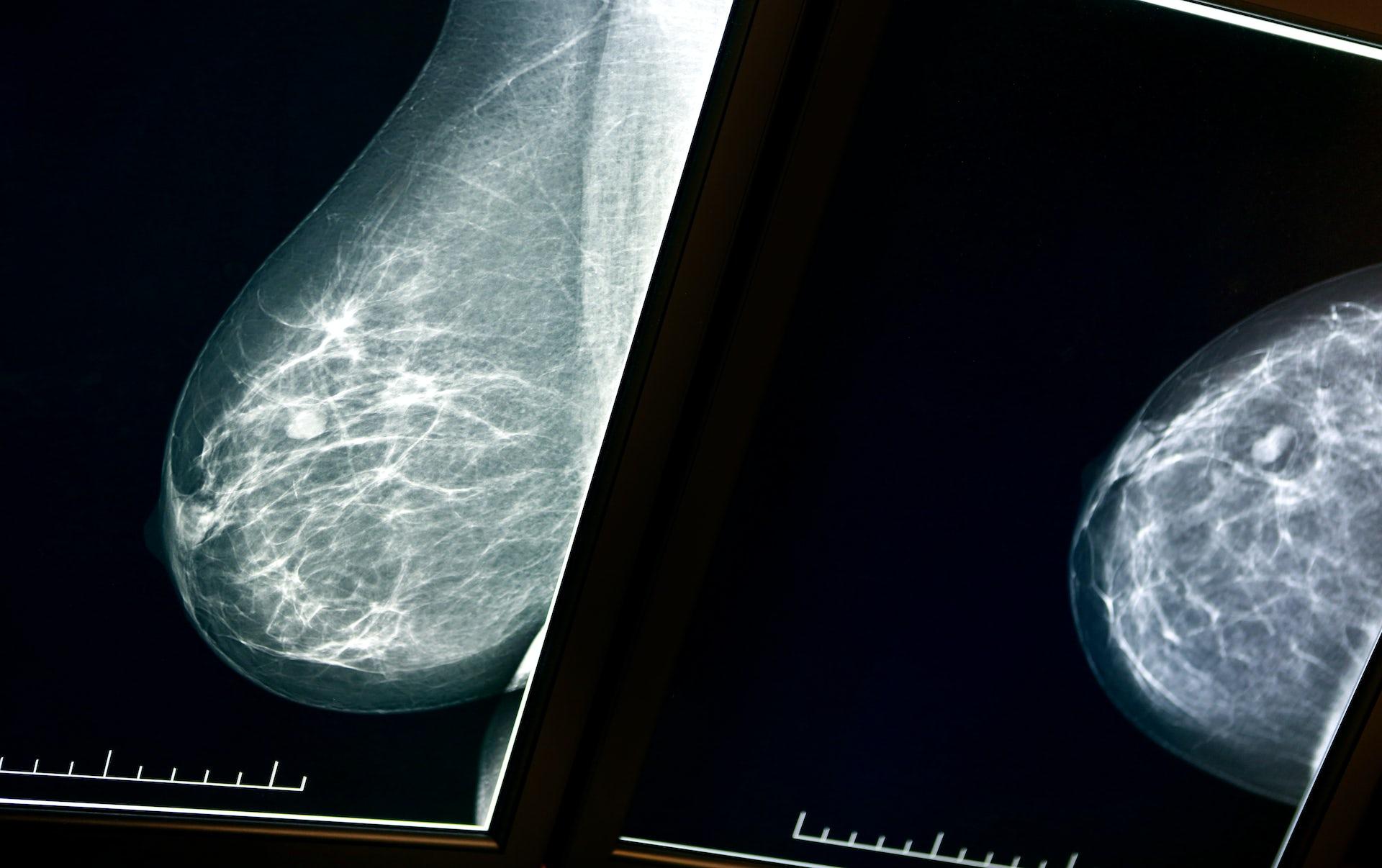Increase breast density