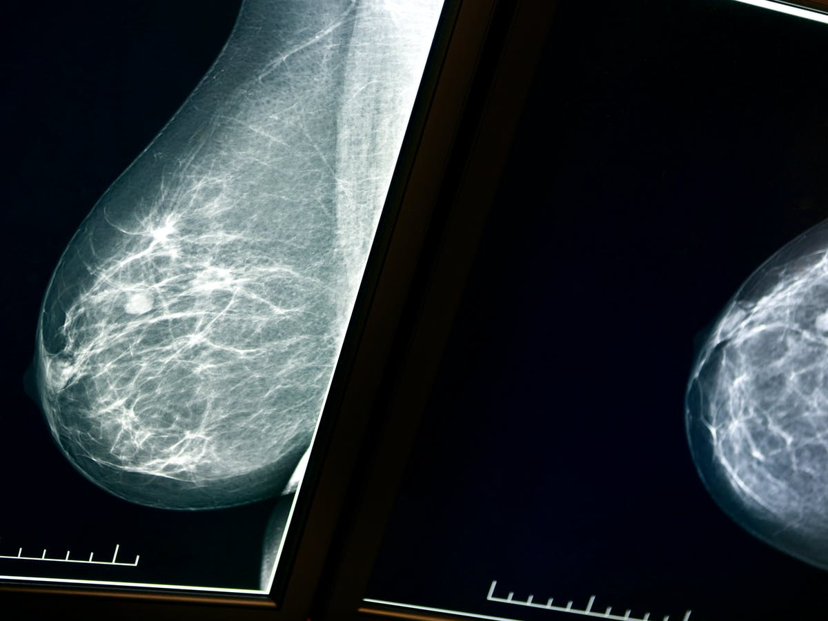Women Should Be Told About Their Breast Density When They Have A