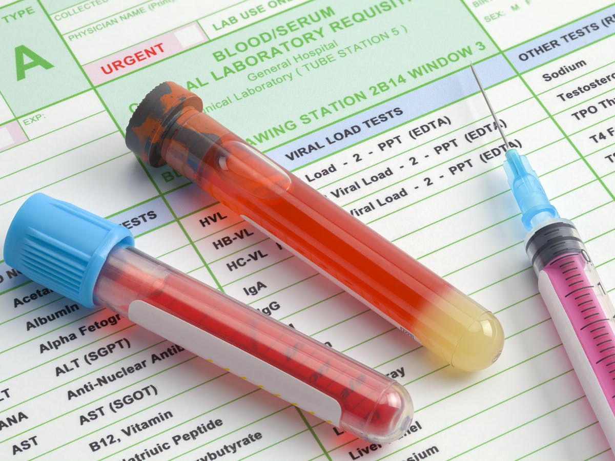 Can We Use A Simple Blood Test To Detect Cancer