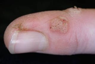 Health Check: do home remedies for common warts really work?