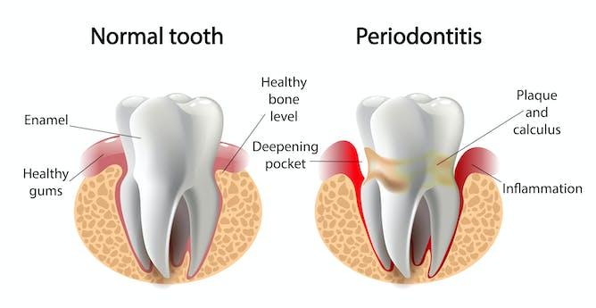 Výsledek obrázku pro periodontitis