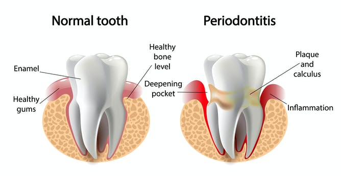 Hasil gambar untuk periodontitis