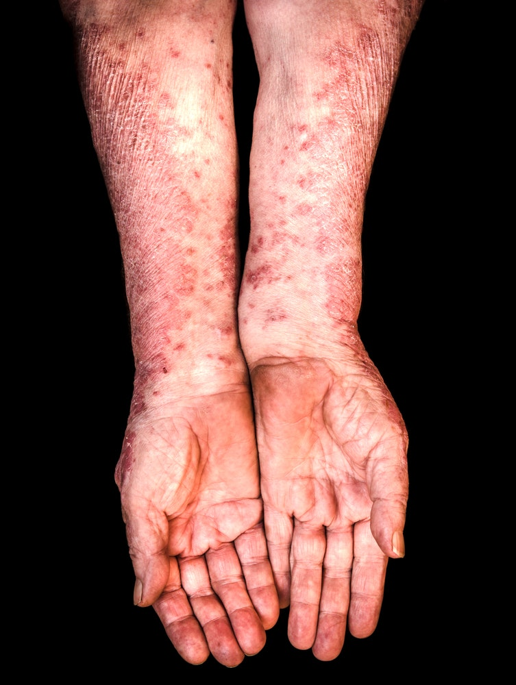 People with prosiasis suffer often debilitating rashes made up of itchy,  scaly plaques on their skin. from shutterstock.com