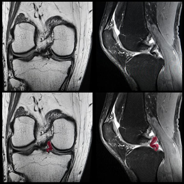 How We Set About Mending Damaged Knees With Stem Cells