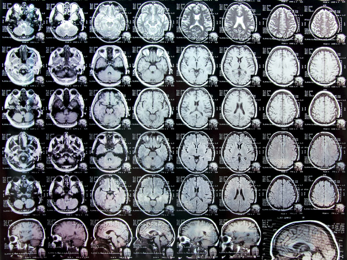 Imaging Study Confirms Differences In Adhd Brains