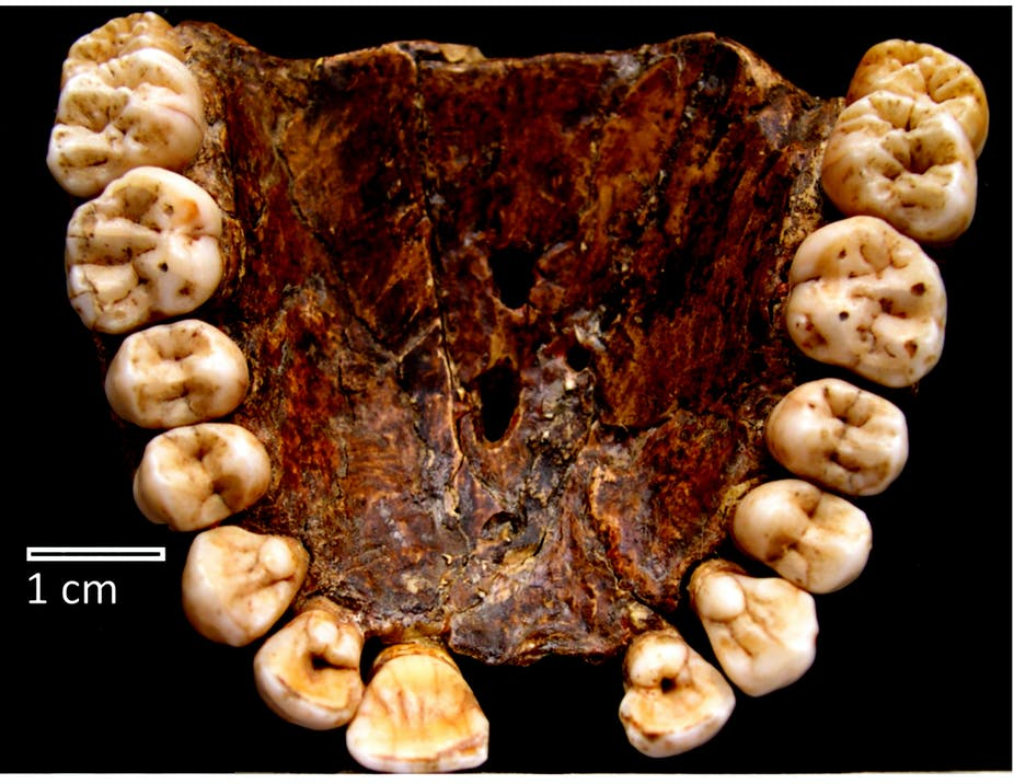 Tooth be told: Millions of years of evolutionary history mark those