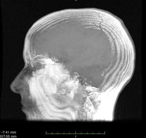 images Brain Surgery Might Ease Tough-to-Treat OCD