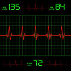 A normal heart rate is between 60 and 100 beats per minute. Shutterstock