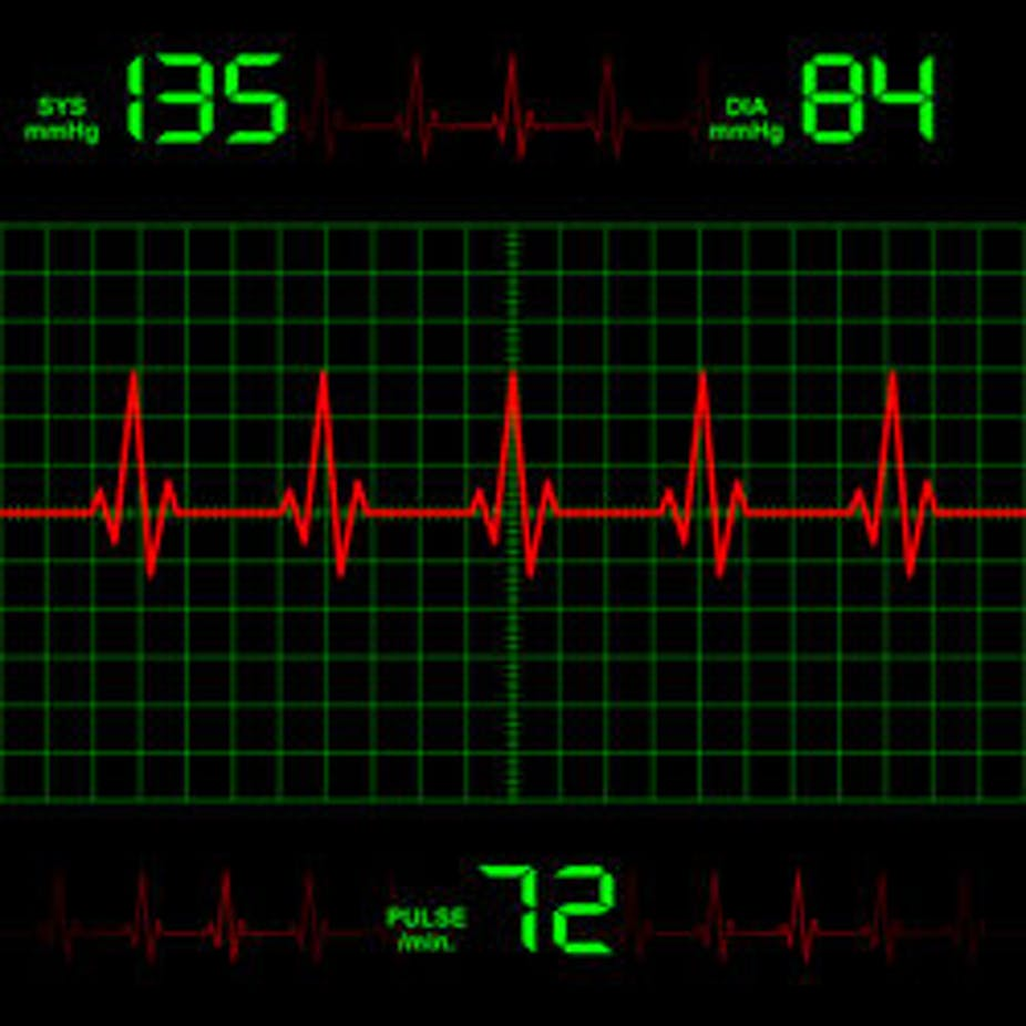 Why palpitations or an irregular heartbeat need urgent attention