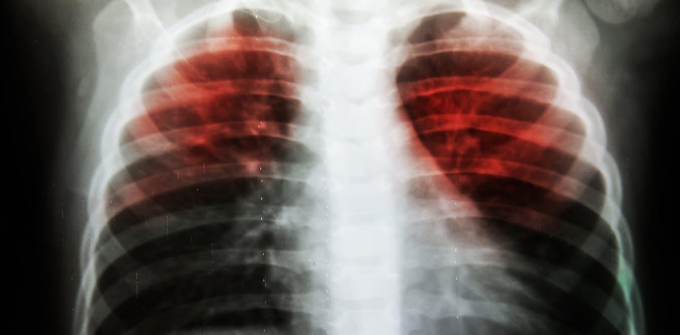 Explainer: what is TB and am I at risk of getting it in Australia?