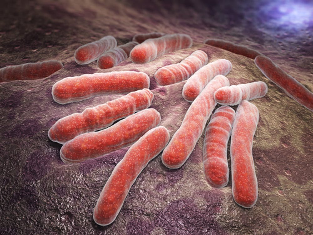 Explainer What Is Tb And Am I At Risk Of Getting It In Australia Tb Is Caused By The Bacterium Mycobacterium Tuberculosis From  Shutterstockcom