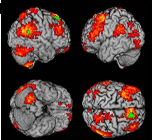 Treatment Resistant Depression and Brain-Imagining Research recommendations