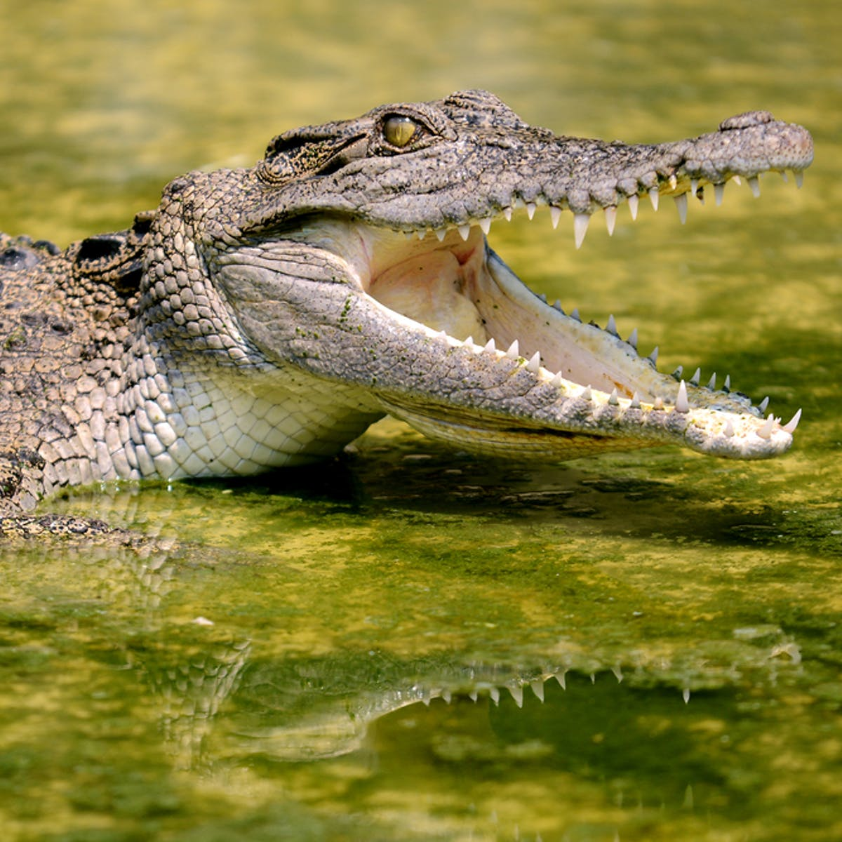 If a croc bite doesn't get you, infection will