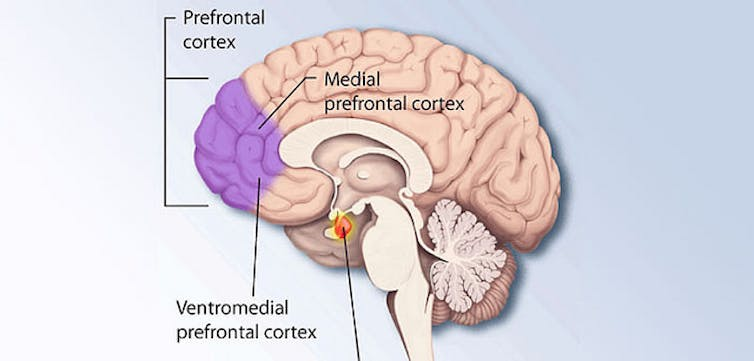 Junk food packaging hijacks the same brain processes as drug and a part of the brains prefrontal cortex is strongly involved in self control curtiscripeflickr cc by ccuart Choice Image