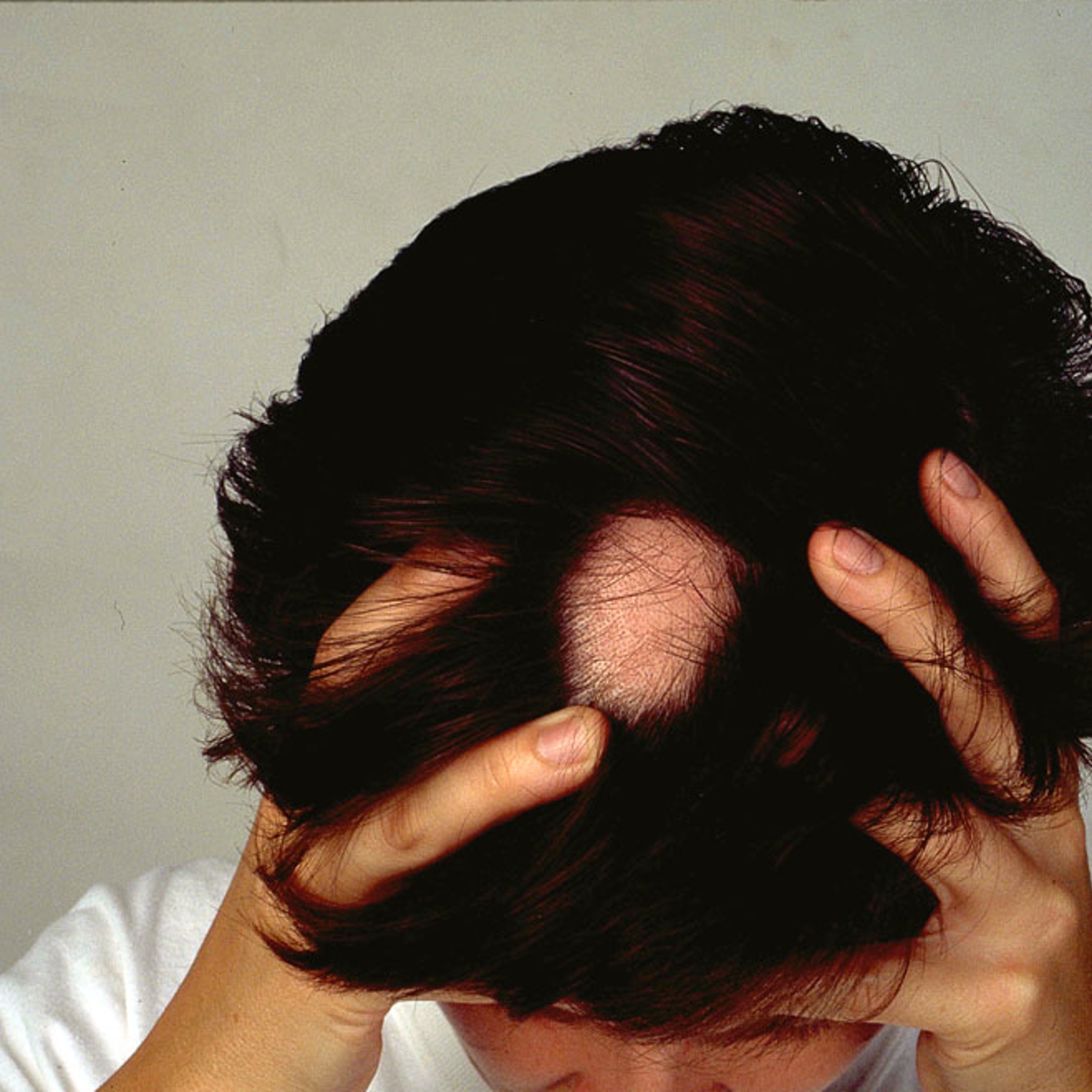Explainer What Causes Alopecia Areata And Can You Treat This Type Of Hair Loss