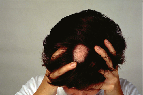 Explainer What Causes Alopecia Areata And Can You Treat This Type