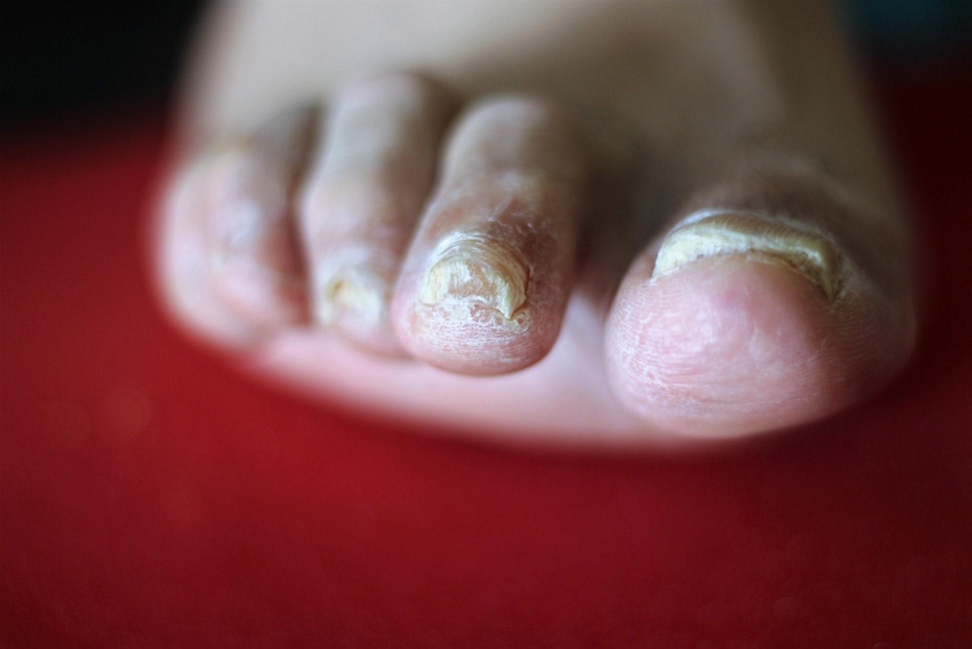 How to make a broken toenail heal faster