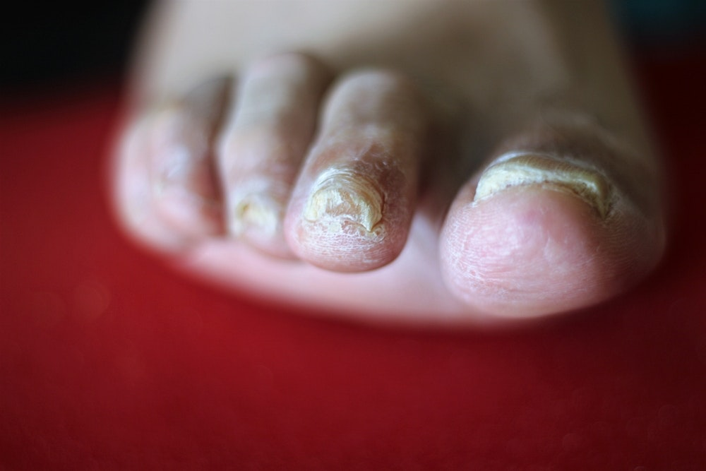 Explainer: why do we get fungal nail infections and how can we treat them?