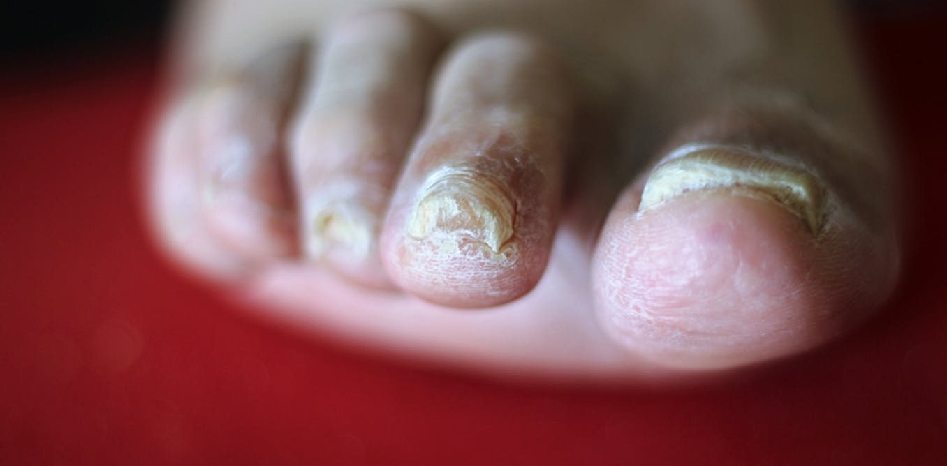 Explainer: why do we get fungal nail infections and how can we treat ...