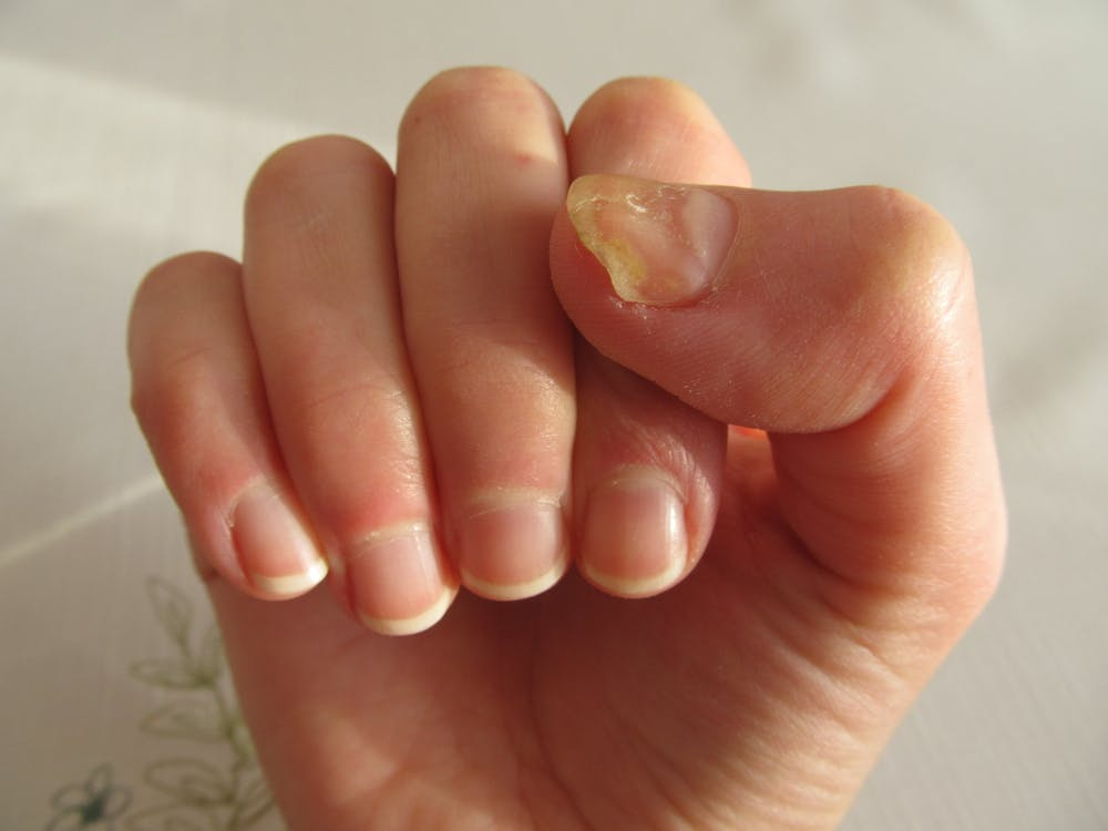 Fungal Infection Of The Fingernails Is Less Common Than Toenails From Www Shutterstock