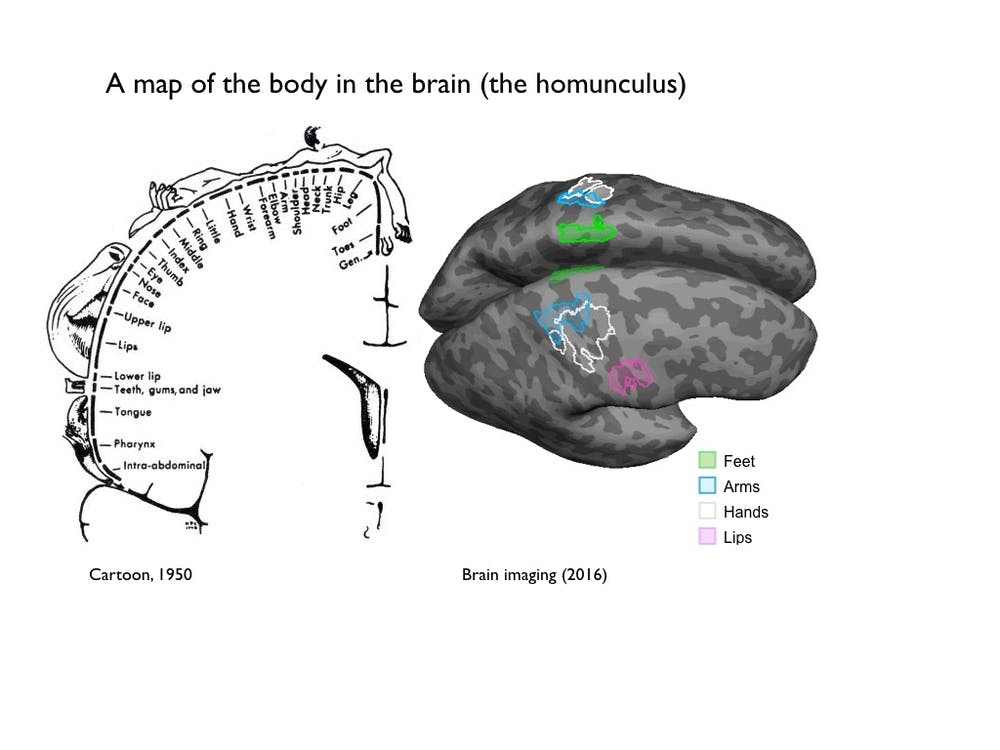 Study of one-handed people reveals how the brain adapts after losing ...