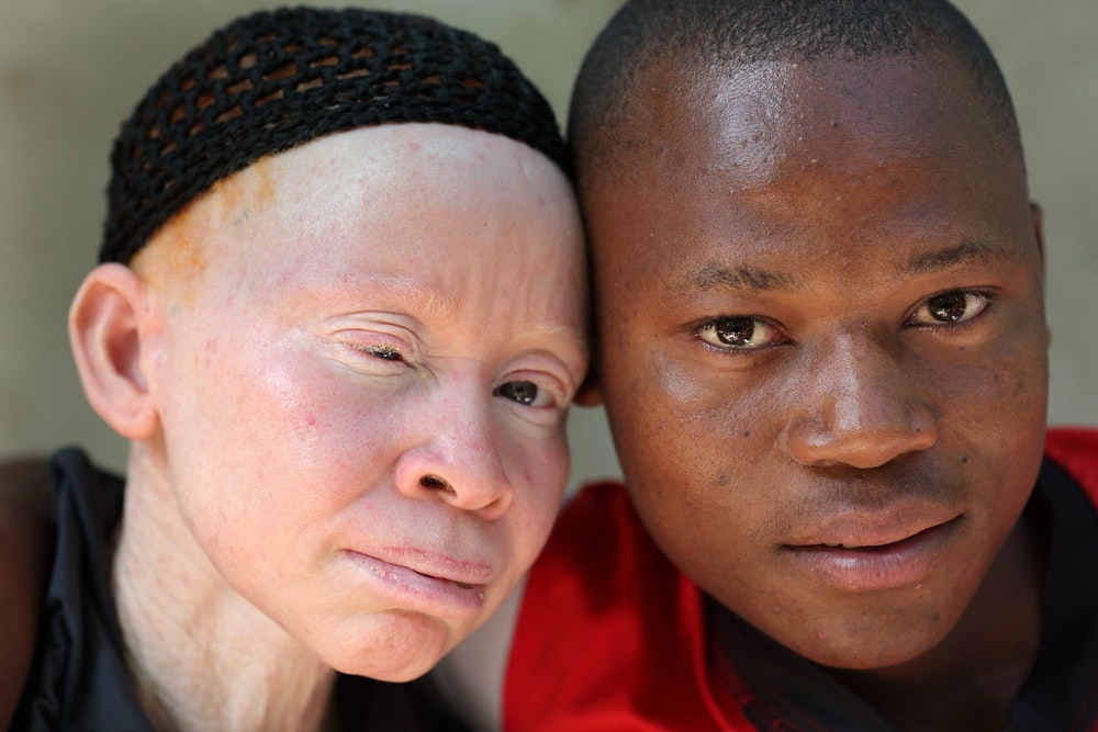 What sex does albinism affect