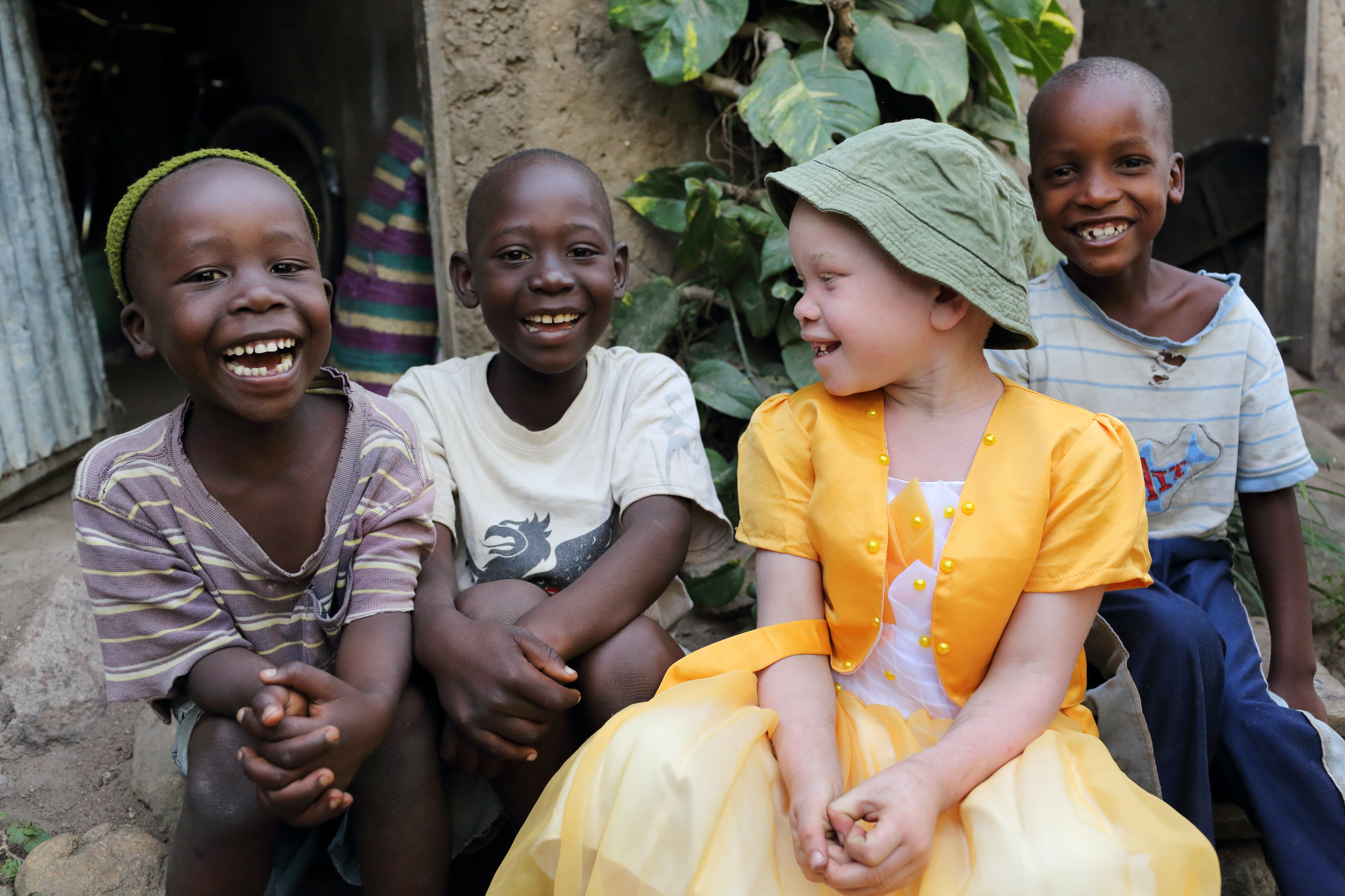 a research on albinism and its effects on people Core messages on albinism education albinism and its effects on albinos with implications for schooling people with albinism experience nystagmus which is.