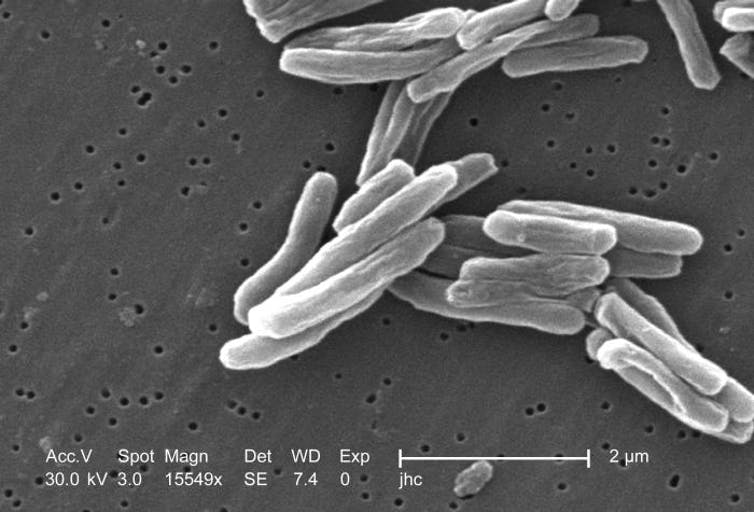 Mycobacterium tuberculosis bacteria is a source of neglected disease