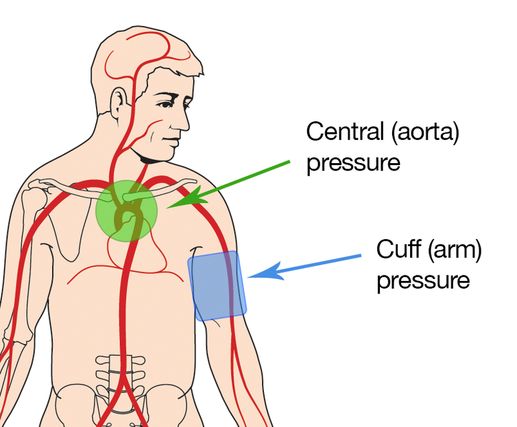 an analysis of the method of measuring arterial blood pressure Auscultatory versus oscillometric blood pressure measurement in patients with atrial fibrillation and arterial hypertension regardless the bp measuring method.