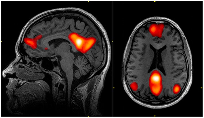 If a brain can be caught lying, should we admit that evidence to court? Here's what legal experts think