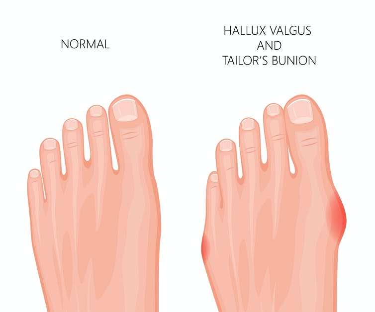 bunions on feet treatment