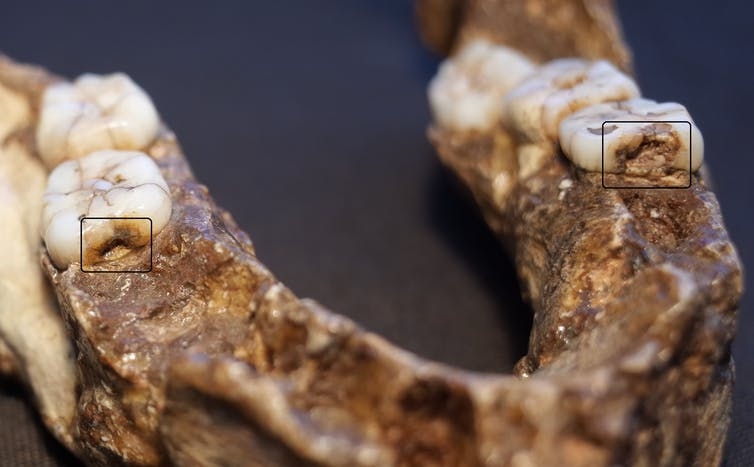 Two of the earliest examples of cavities (Homo erectus). Ian Towle, Author provided